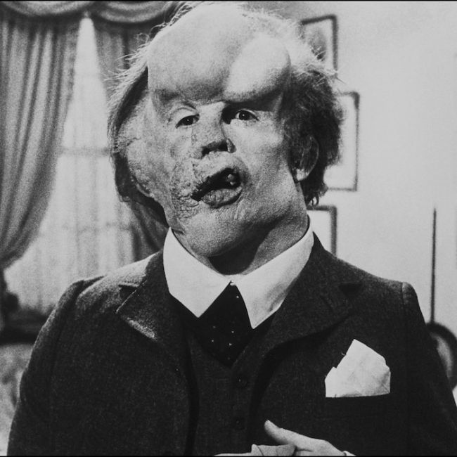 The Elephant Man (1980) - David Lynch
